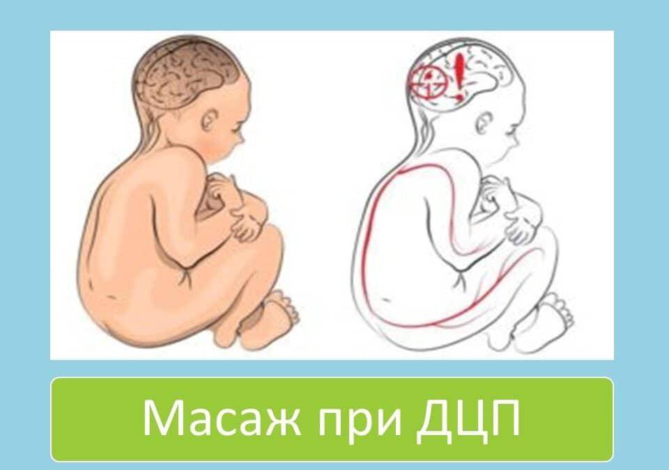 Масаж при дитячому церебральному паралічі (ДЦП)