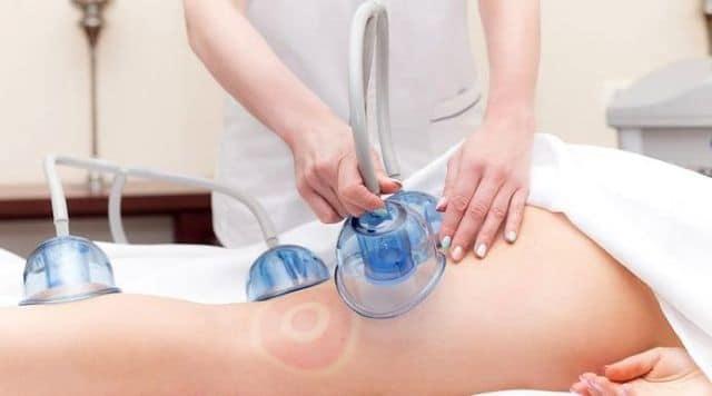 Вакуумний масаж: особливість, способи застосування та користь